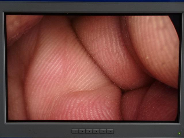 Stryker 502-457-010 0 Degree 10mm Autoclavable Laparoscope, 90 Day Warranty